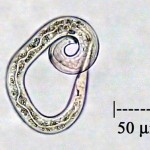 Figure 1. Nematode imaged with a Leica CME microscope (40x objective) and Moticam 1000 camera with 2x transfer lens for an effective magnification of 800x. Microphotograph by Bill Dembowski.